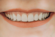 Veneer Treatment Near Me