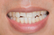 Smile Makeover Treatment in Sacramento